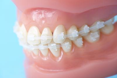目立たない装置による成人の矯正歯科治療